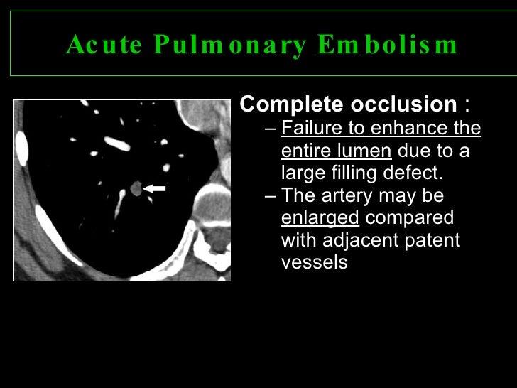 Case Study #7: AMI or Pulmonary Embolism? - Prehospital ...