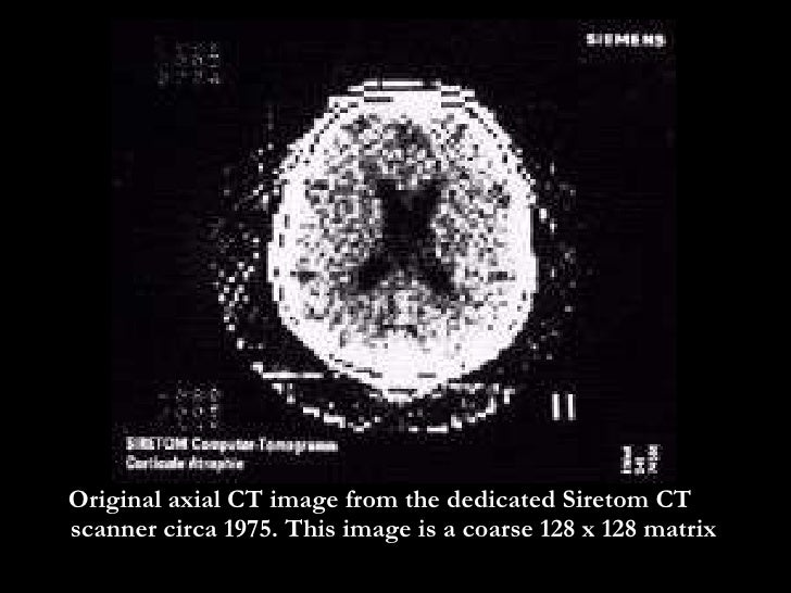 emi and the ct scanner essay The invention and development of the ct scanner is one of the most fascinating tales in the history of radiology it includes of one of the 20th century's most important recording companies, perhaps the most influential recording group of all time, and a nobel laureate in medicine and physiology who never attended medical school or earned a phd.