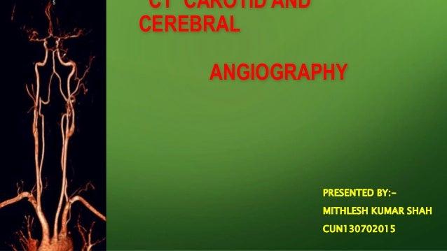 CT CAROTID AND CEREBRAL ANGIOGRAPHY PRESENTED BY:- MITHLESH KUMAR SHAH CUN130702015