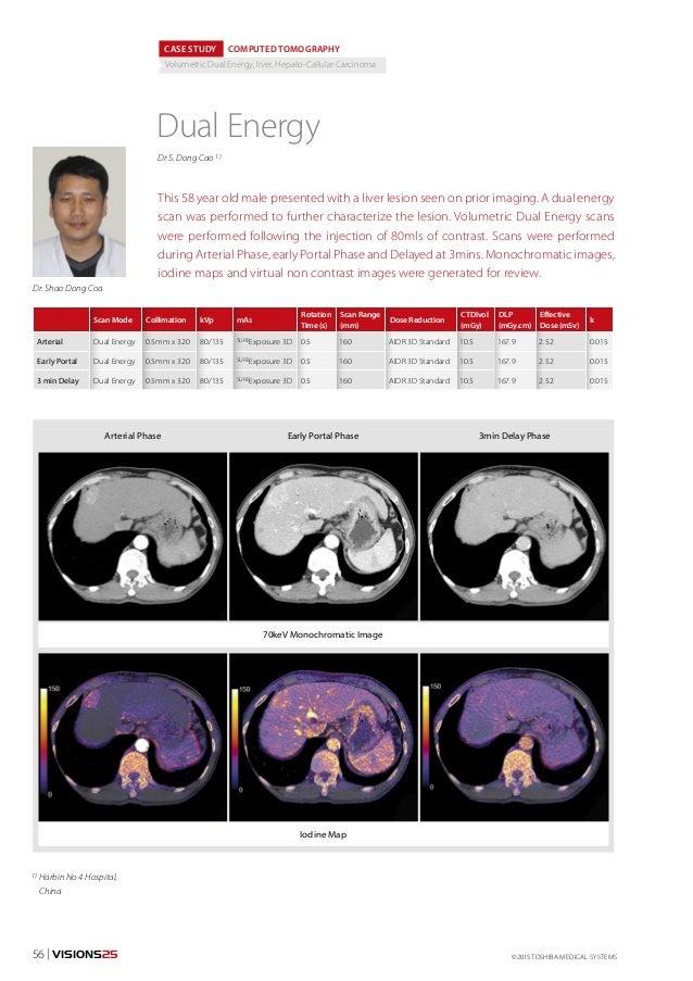 ©2015 TOSHIBA MEDICAL SYSTEMS56 | VISIONS25 1) Harbin No 4 Hospital, China CASE STUDY COMPUTED TOMOGRAPHY Volumetric Dual ...