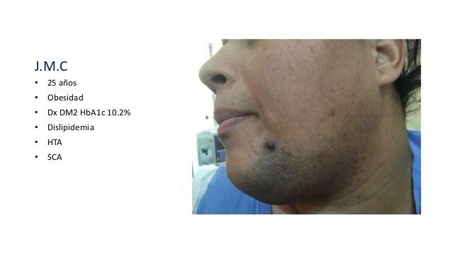 J.M.C • 25 años • Obesidad • Dx DM2 HbA1c 10.2% • Dislipidemia • HTA • SCA