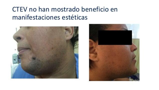 Agenda • Definición del SOP (SMR) • Efectos de CTEV en • Manifestaciones estéticas • Aspectos metabólicos • Aspectos repro...
