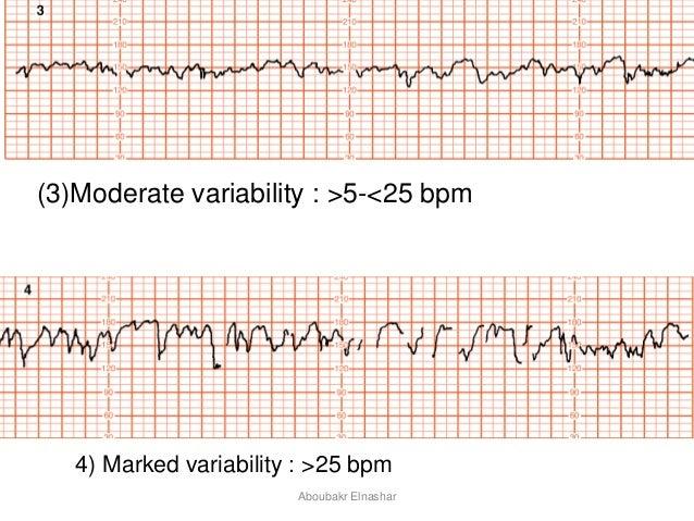 Non reactive fetal heart rate