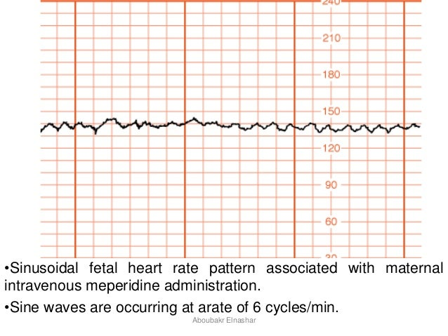 how to read fetal heart tracing