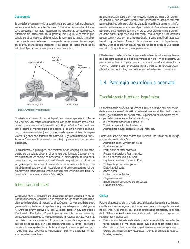 Pediatría -  Hipoactividad. Disfunción autonómica.  Es importante la identificación y el tratamiento de las convulsiones (t...