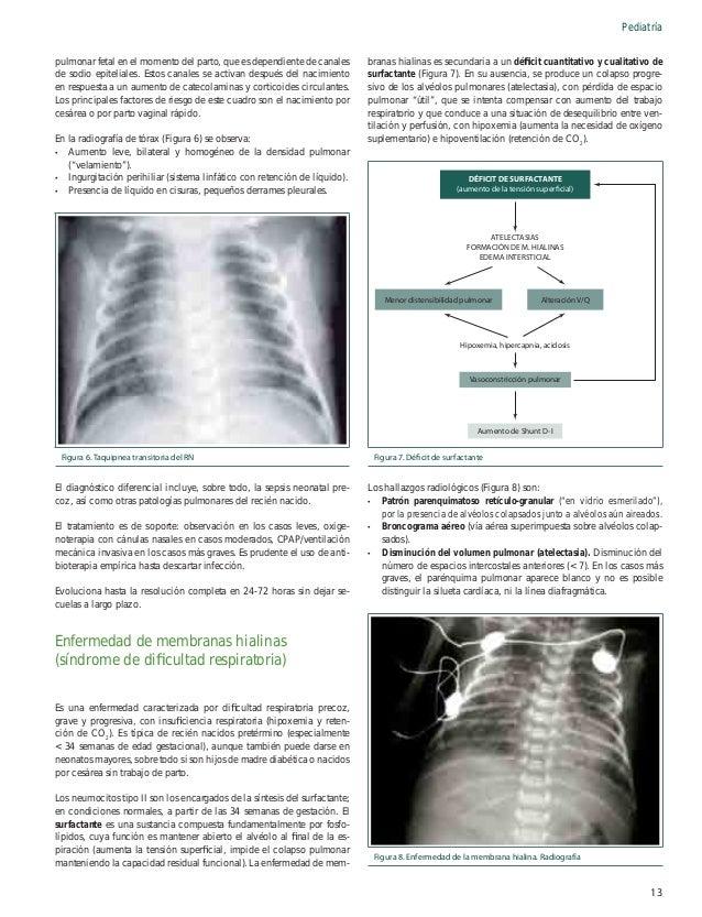 Pediatría ción pre y posductal (una diferencia de saturación de oxígeno > 10% es compatible con un cortocircuito derecha a...