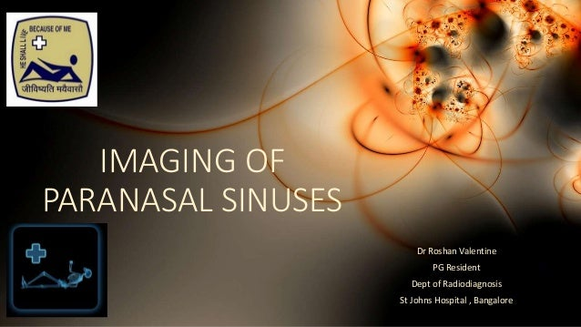 IMAGING OF PARANASAL SINUSES Dr Roshan Valentine PG Resident Dept of Radiodiagnosis St Johns Hospital , Bangalore