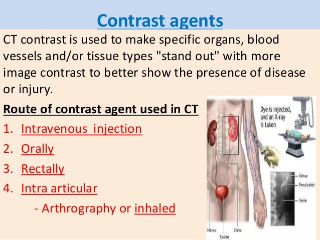 Ct scan final 2 Types of contrast