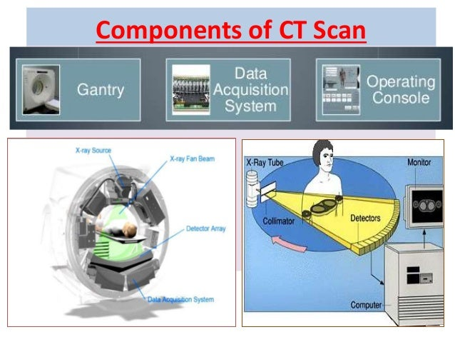 components of ct scanner pdf