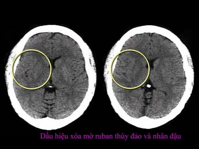 Thấy gì trên hình này  • A Mất phân biệt chất xám chất trắng và/hay  giảm đậm độ  • B Dãn não thất  • C Xuất huyết  • D Kh...