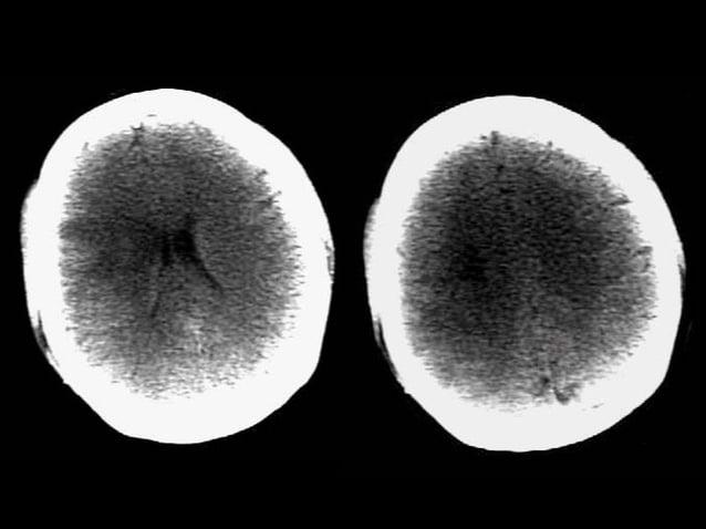 Trường hợp 9  • Bệnh nhân nữ 38 tuổi nhập viện vì nhức đầu  dữ dội xảy ra trước đó 3 giờ  • CT Scan