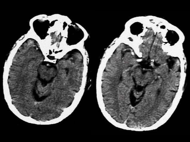 Trường hợp 9  • Chẩn đoán : Phình động mạch thân nền