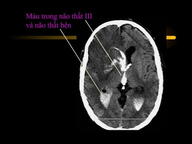 Trường hợp 12  • Chẩn đoán : tắc động mạch não trước, não giữa  và não sau bên trái