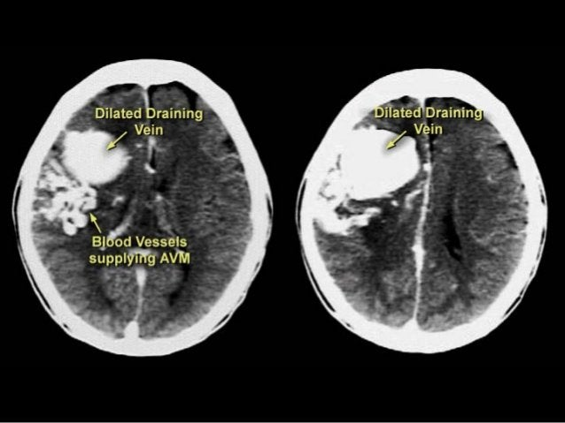 CT scan trong tai biến mạch máu não