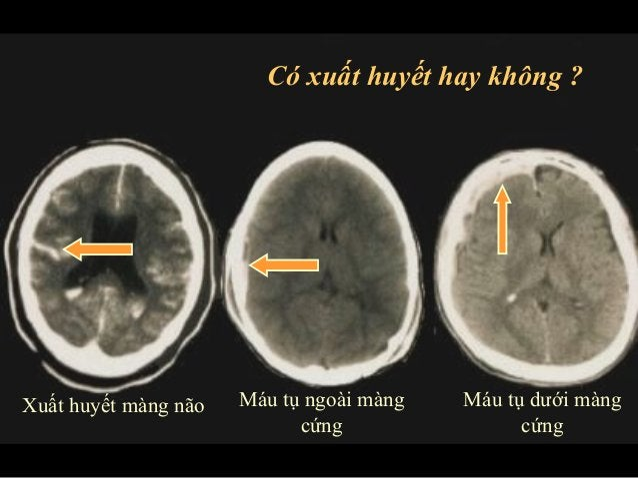 Có xuất huyết hay không ?  Xuất huyết màng não Máu tụ ngoài màng  cứng  Máu tụ dưới màng  cứng
