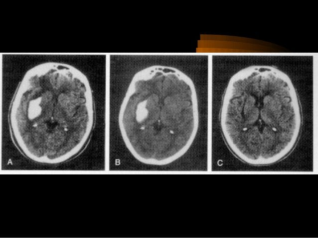 Hình ảnh tăng đậm độ của động mạch não giữa