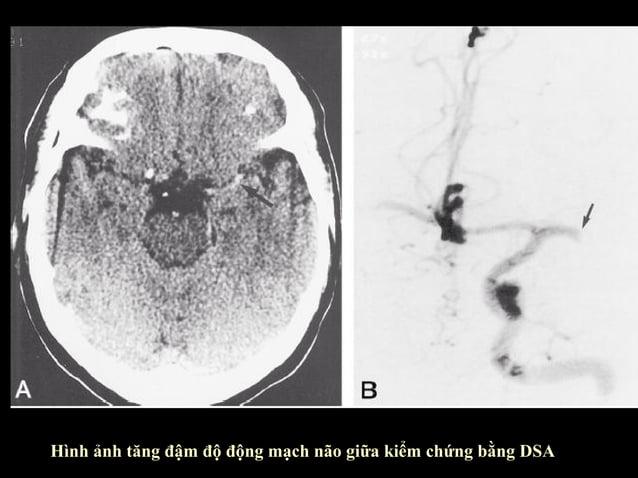 Dấu ru băng thùy đảo  • Ðây là lớp vỏ não cũa thùy đảo ( insula )  • Bình thường thấy lớp này rõ do phía trong là lớp  chấ...