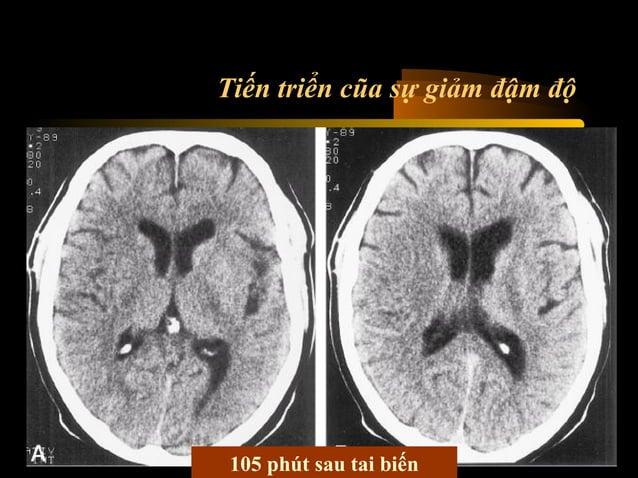 Vùng phân bố động mạch  Não trước Não giữa Não sau