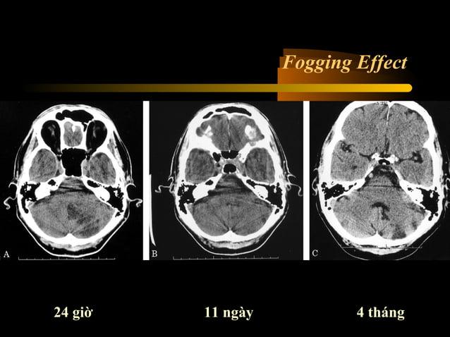 Nhồi máu vùng nuôi động mạch não trước