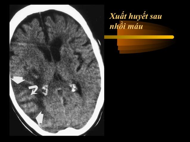 Nhồi máu vùng nuôi động mạch não giữa