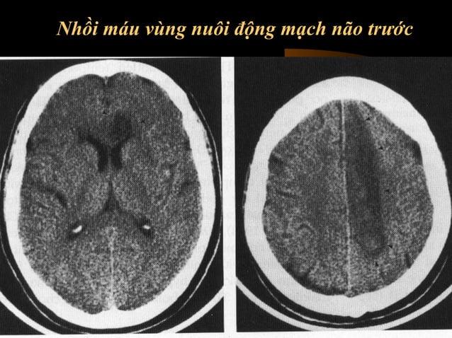Mức độ tổn thương động mạch não giữa  • Thường sử dụng trong trường hợp tắc động mạch  não giữa  • Vùng não bị tổn thương ...