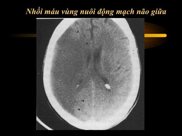 Vùng chi phối cũa động mạch não giữa