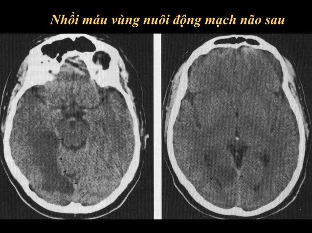 Vùng chi phối cũa động mạch não giữa  Dưới 1 thùy <33%, trên 2 thùy > 33% (Von Kumar)  <33% >33% >33%