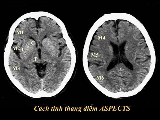 Bễ củ trung não  Bễ trên yên  Thoát vị thùy thái dương giai đoạn sớm