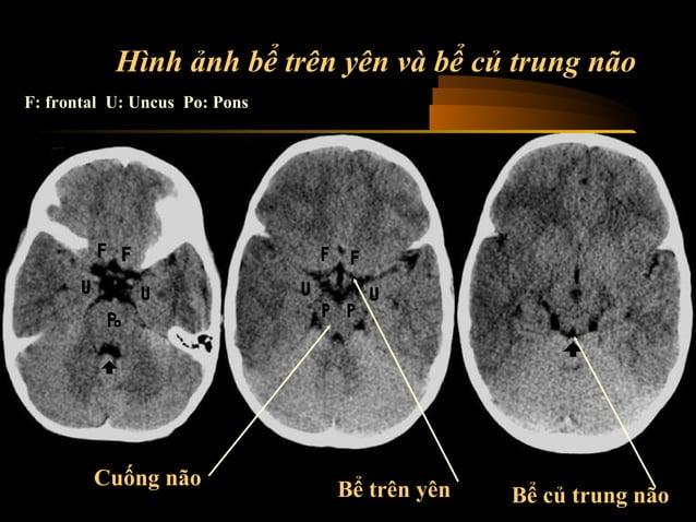 Trường hợp 1  • Phụ nữ 60 tuổi nhập viện sau khi bị liệt đột  ngột nửa người bên trái 3 giờ trước đó  • CT Scan thực hiện ...