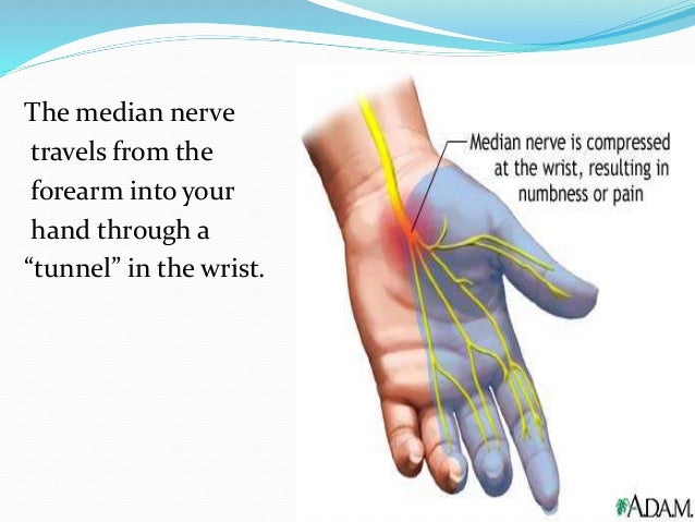 Carpal Tunnel Syndrome and Dupuytren\'s contracture