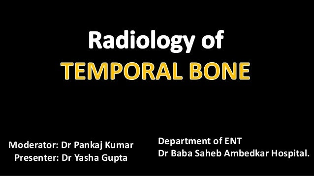 Moderator: Dr Pankaj Kumar Presenter: Dr Yasha Gupta Department of ENT Dr Baba Saheb Ambedkar Hospital.