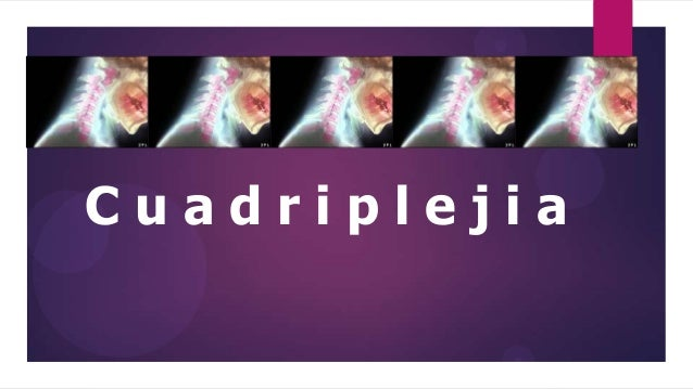 Cuadriplejia