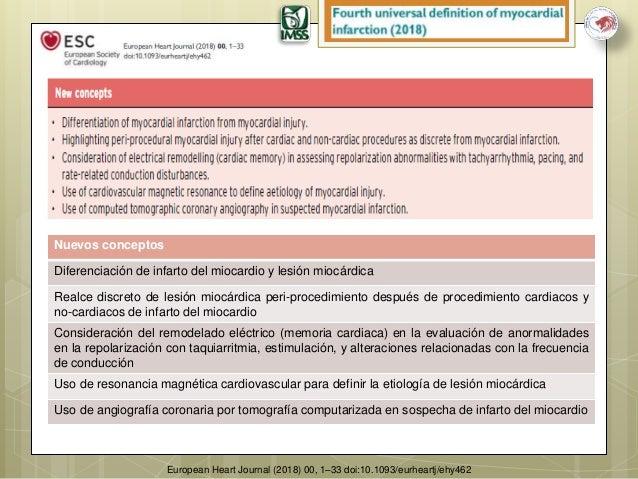 Cuarta definicion universal de infarto del miocardio 2018 for Universal definicion