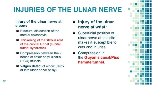 Cubital Tunnel Syndrome 1