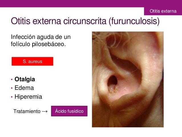 cuerpos extraños en oído y otitis externa, Skeleton