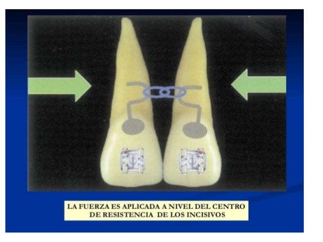 El centro de resistencia de un diente depende de la longitud y morfología radicular, de la cantidad de raíces y del nivel ...
