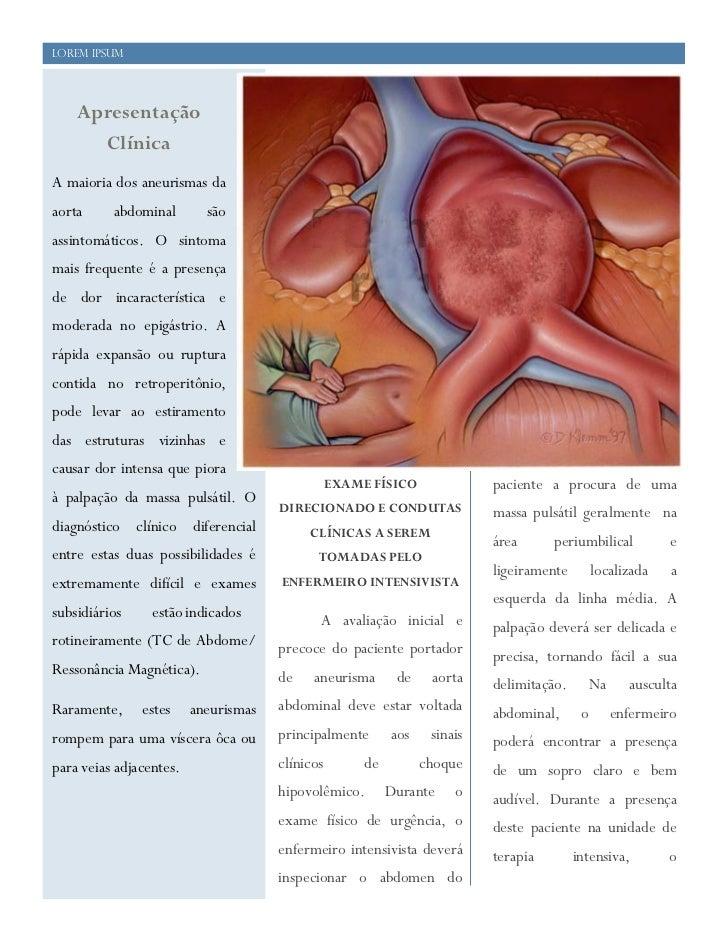 21    Lorem Ipsum        Apresentação          Clínica    A maioria dos aneurismas da    aorta     abdominal        são   ...