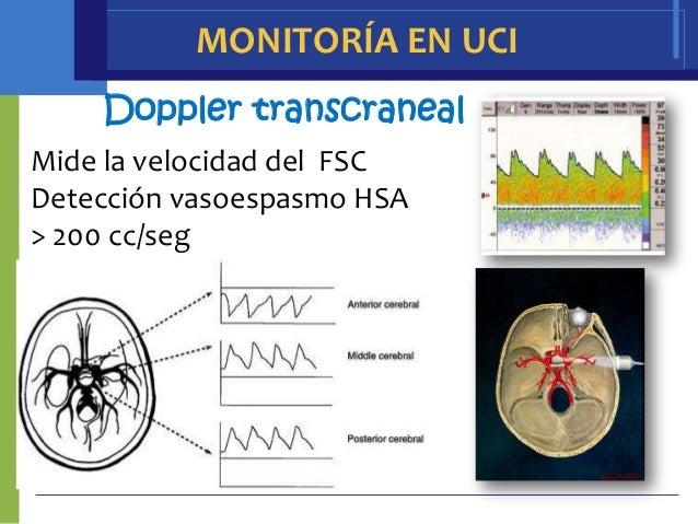 MONITORÍA EN UCI    Doppler transcranealMide la velocidad del FSCDetección vasoespasmo HSA> 200 cc/seg