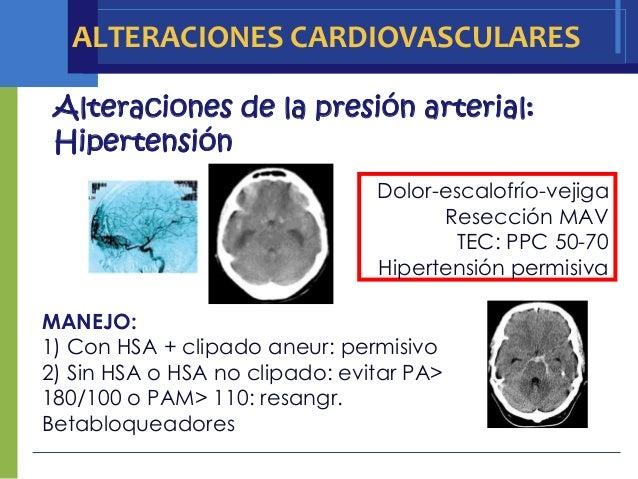 ALTERACIONES CARDIOVASCULARES Alteraciones de la presión arterial: Hipertensión                                Dolor-escal...