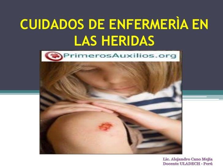 CUIDADOS DE ENFERMERÌA EN LAS HERIDAS<br />Lic. Alejandro Cano Mejía<br />Docente ULADECH - Perú<br />