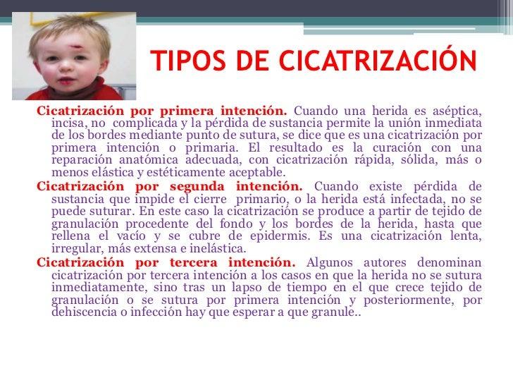 TIPOS DE CICATRIZACIÓN<br />Cicatrización por primera intención. Cuando una herida es aséptica, incisa, no  com...