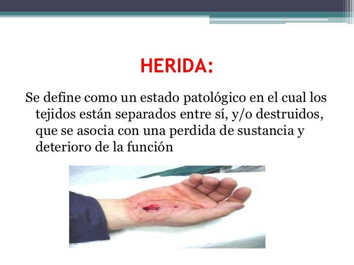 HERIDA:<br />Se define como un estado patológico en el cual los tejidos están separados entre sí, y/o destruidos, que se a...