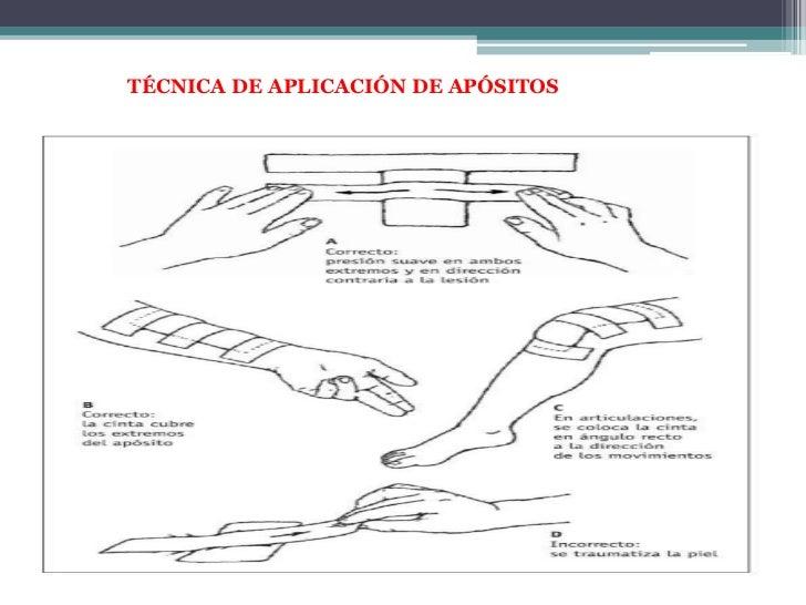 PRECAUCIONES Y SUGERENCIAS<br /> Lavado de manos antes y después de la cura<br /> Técnica estéril<br /> Informar al pacien...