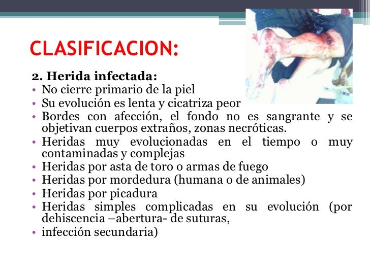 CLASIFICACION:<br />2. Herida infectada:<br />No cierre primario de la piel<br />Su evolución es lenta y cicatriza peor<br...