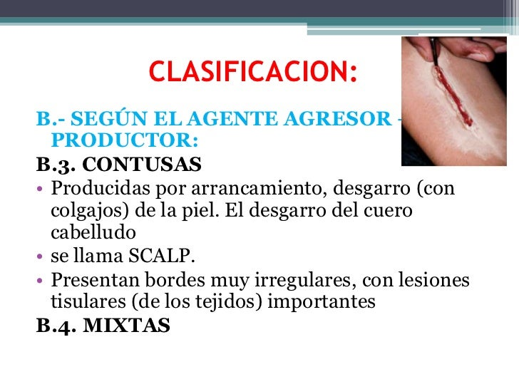CLASIFICACION:<br />B.- SEGÚN EL AGENTE AGRESOR – PRODUCTOR:<br />B.3. CONTUSAS<br />Producidas por arrancamiento, desgarr...