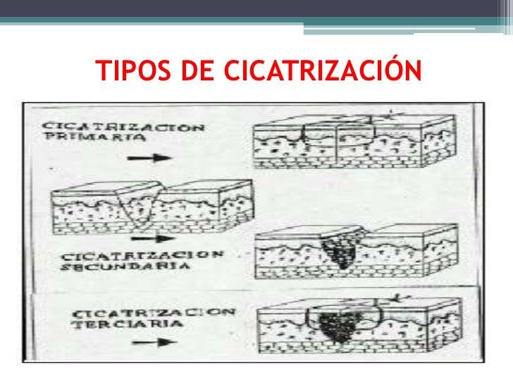 TIPOS DE CICATRIZACIÓN<br />