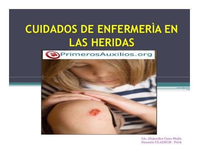 CUIDADOS DE ENFERMERÌA EN LAS HERIDAS