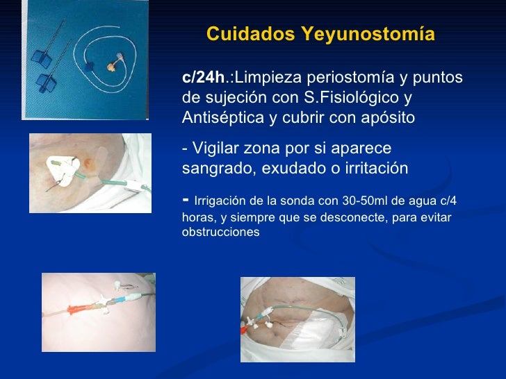 Cuidados gastrostomias y yeyunostomias for Cuidados de la vinca