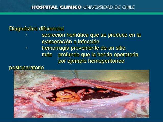 Diagnóstico diferencialDiagnóstico diferencial ·· secreción hemática que se produce en lasecreción hemática que se produce...
