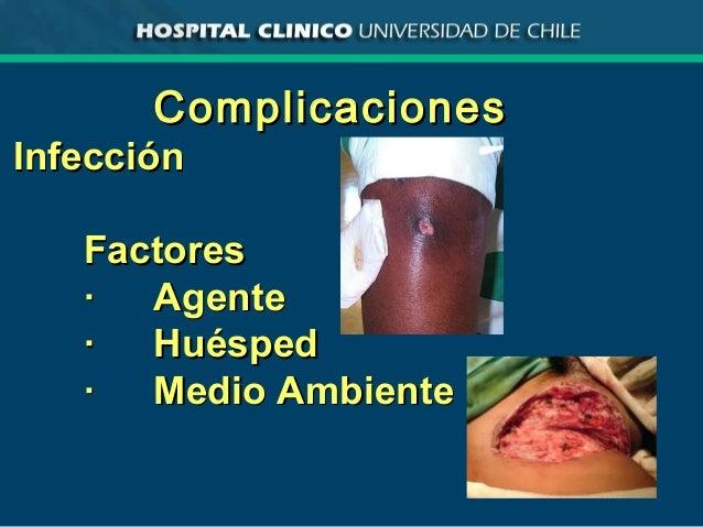 ComplicacionesComplicaciones InfecciónInfección FactoresFactores ·· AgenteAgente ·· HuéspedHuésped ·· Medio AmbienteMedio ...